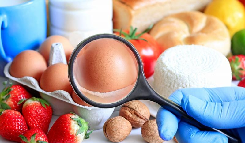 سیستم مدیریت امنیت مواد غذایی